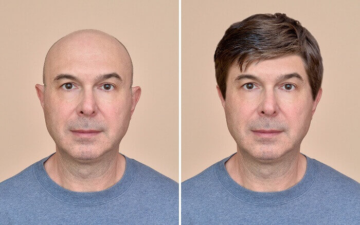 hair replacement