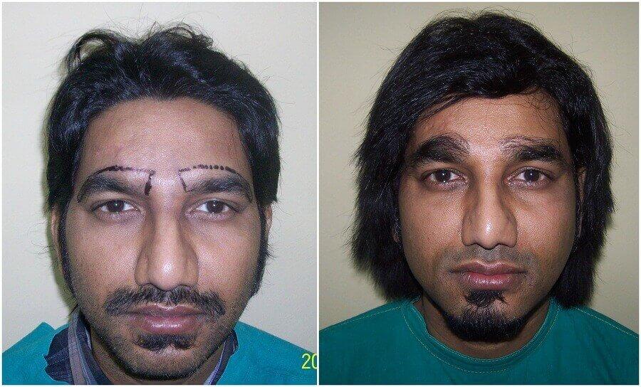 hair transplant clinic result