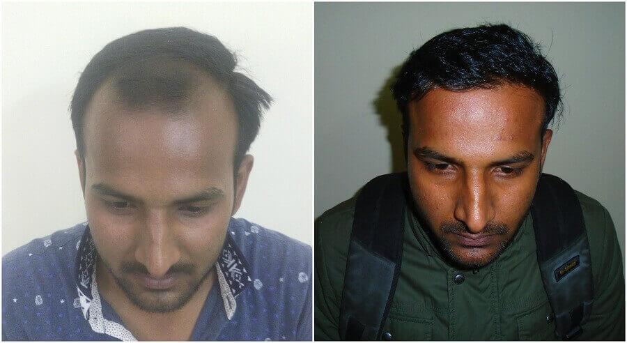 hair transplant result hos