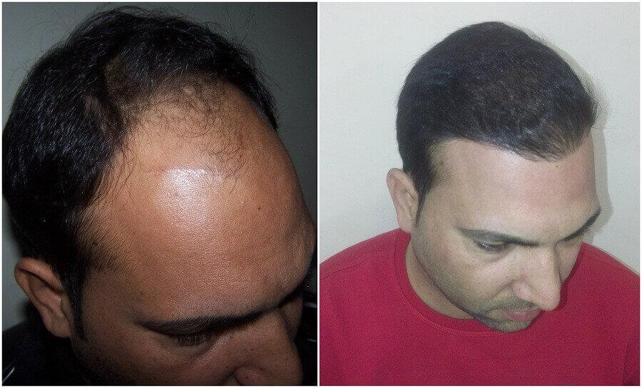 hair transplant result noida